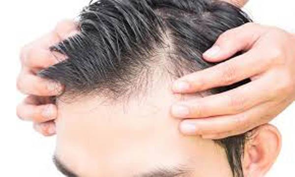 Genesis for male pattern baldness