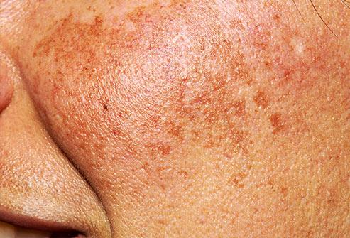 LAZMA Cream for dark skin spots