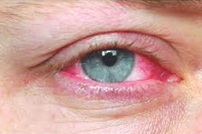 Polyfex for skin and eye infection